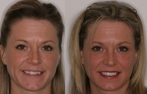 Before-and-after photo using porcelain veneers.