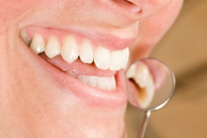 gum disease massapequa
