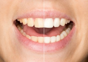 Zoom whitening in Massapequa