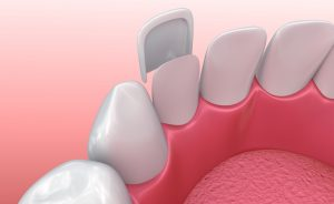 Porcelain veneers can treat a number of dental issues, so find out if you're a good candidate for this procedure