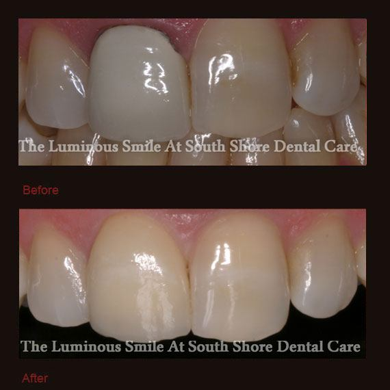 Smile Gallery | South Shore Dental Care