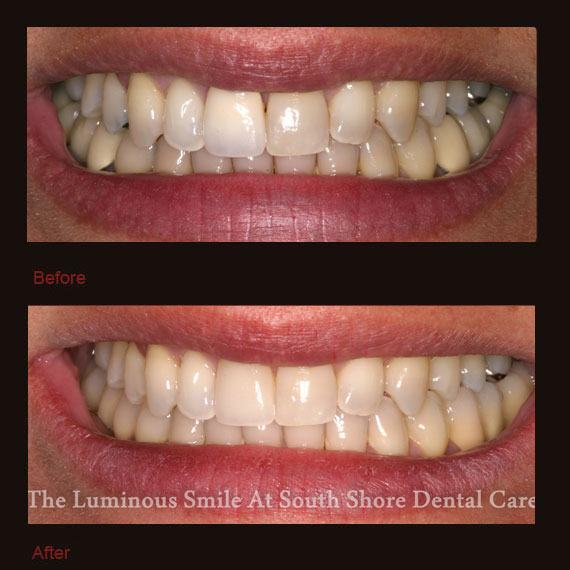 Before and after discolored tooth and veneer repair