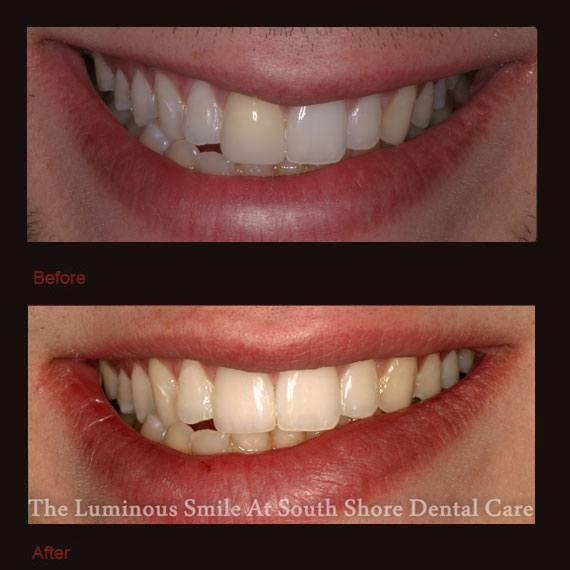 Before and after yellowed tooth and veneer repair