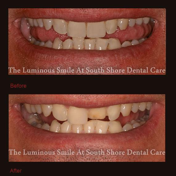 Before and after short front tooth and veneer repair
