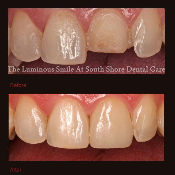 Before and after yellow worn tooth and veneer repair