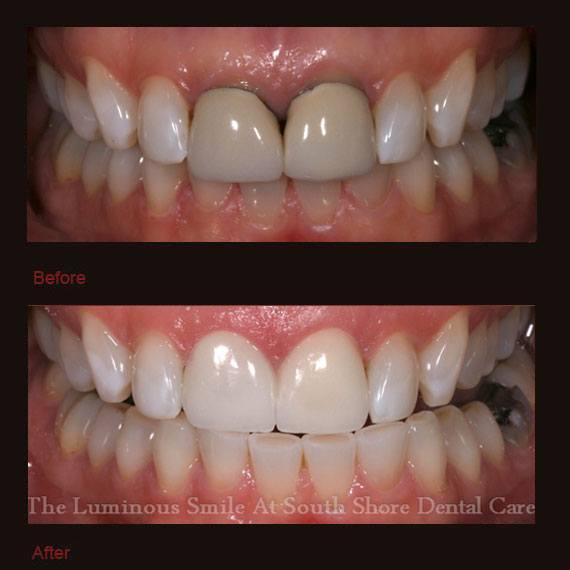 Gray and black discoloration on front teeth and veneer repair