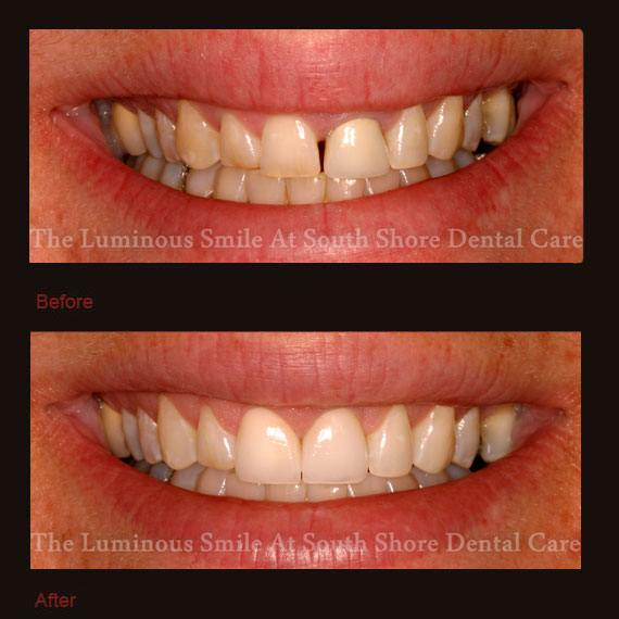 Decayed and gapped front teeth and veneer repair