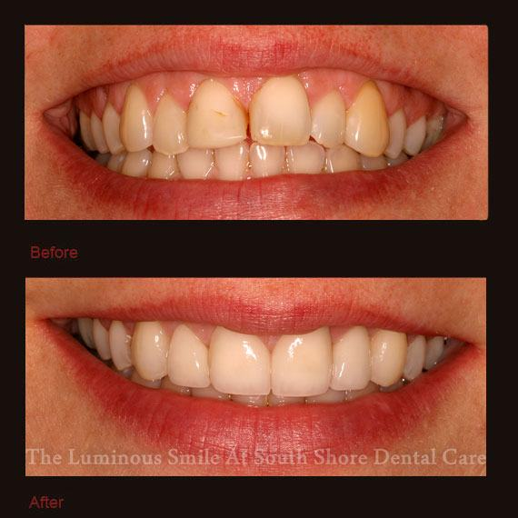 Decayed and discolored four front teeth and veneer repair