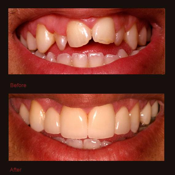 Small and damaged front teeth and veneer repair