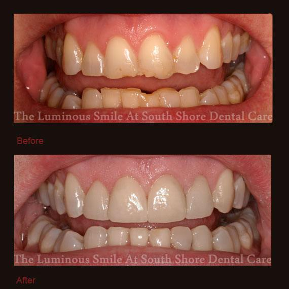 Chipped and decayed front teeth and veneer repair