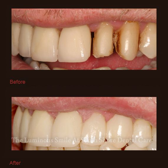 severely decayed teeth repaired with bonding
