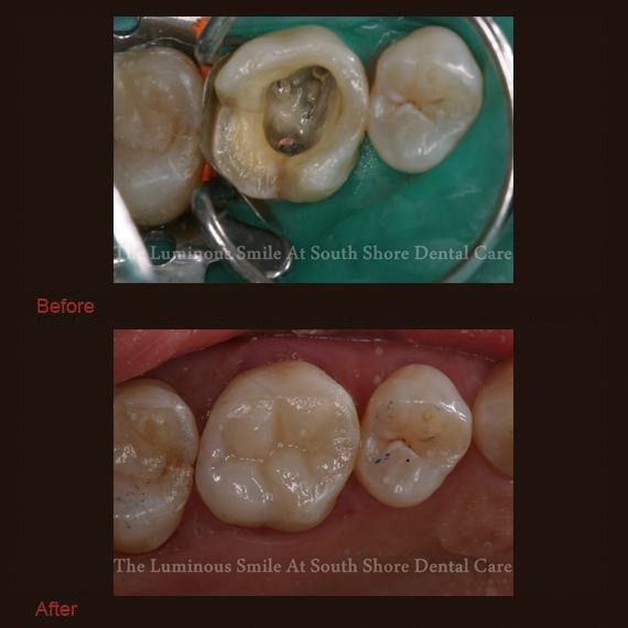 Tooth after amalgam removal and bonding repair