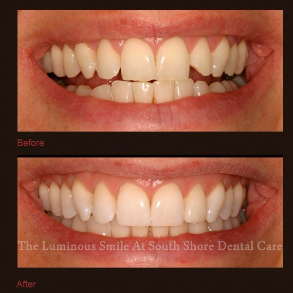 Irregularly shaped teeth repaired with bonding