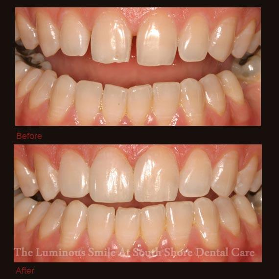 Gapped front teeth repaired with bonding