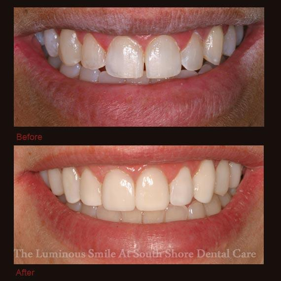 Discolored top teeth repaired with bonding