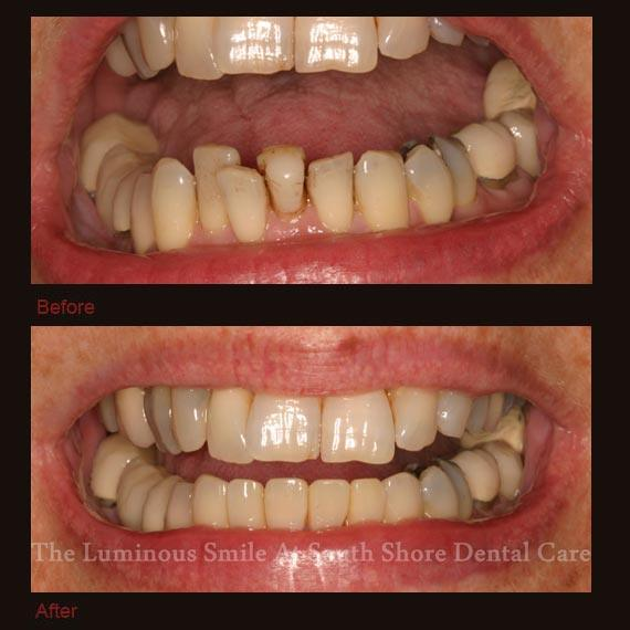 Decayed bottom teeth repaired with bonding