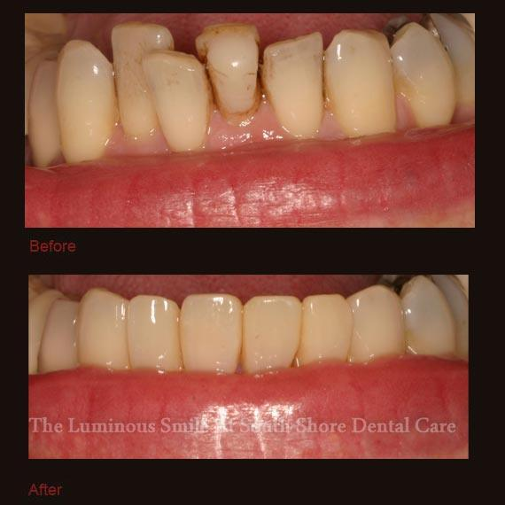 Damaged bottom tooth repaired with bonding