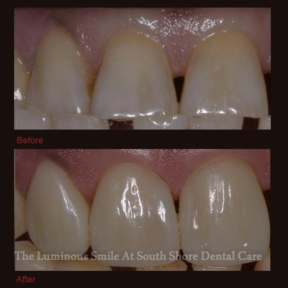 Misshapen teeth repaired with bonding