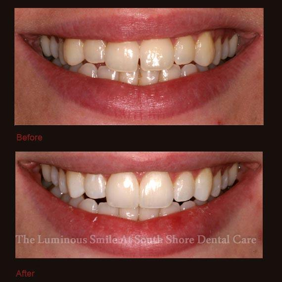 Yellow front teeth repaired with bonding