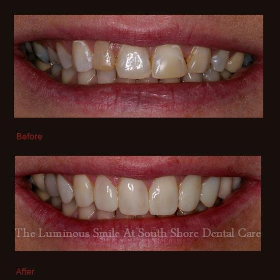 Dark front teeth repaired with bonding