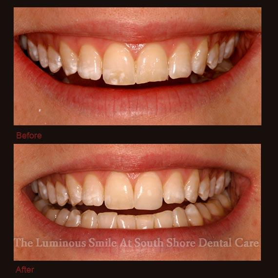 Worn discolored teeth repaired with bonding
