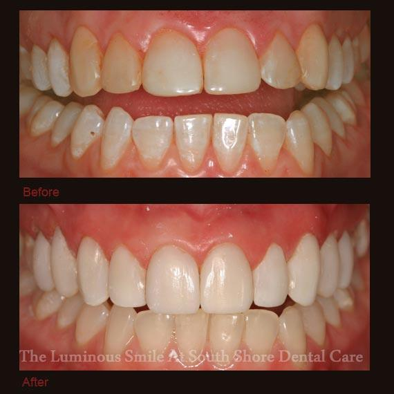 Yellowed decayed top teeth repaired with bonding