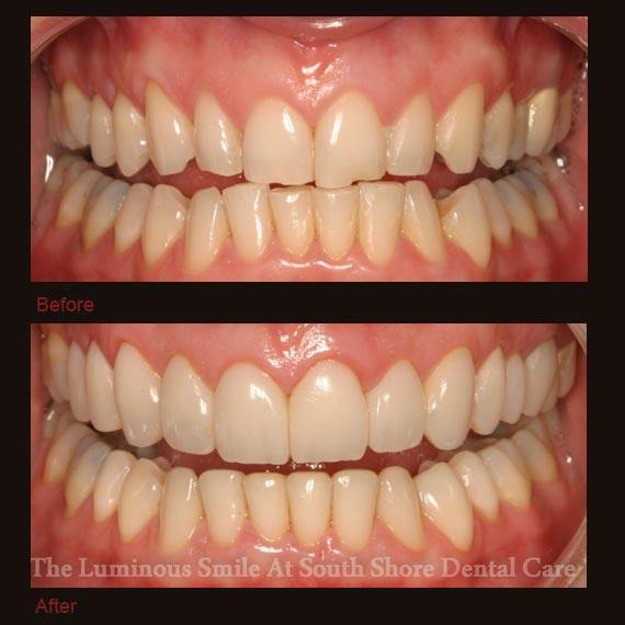 Cracked chipped and worn teeth repaired with bonding
