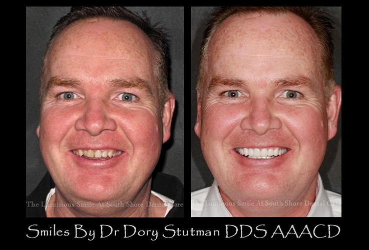 Before and after images of older male patient