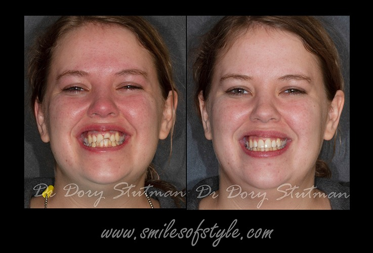 Young woman before and after smile repair