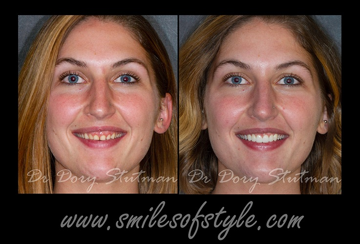 Woman before and after gum recontouring