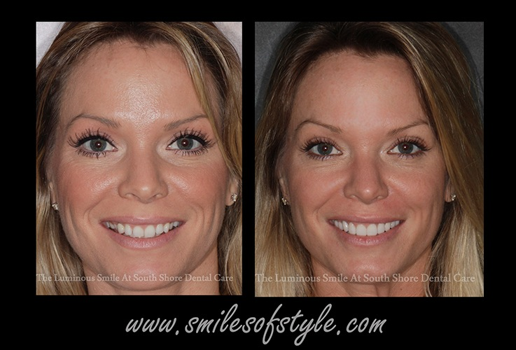 Woman before and after cosmetic dentistry