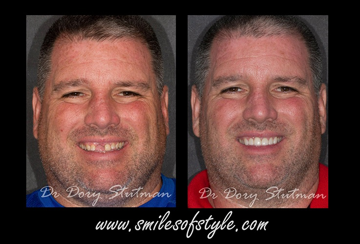 Man before and after tooth replacement