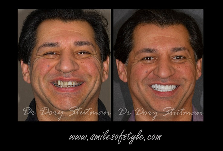 Man with flawless smile before and after treatment
