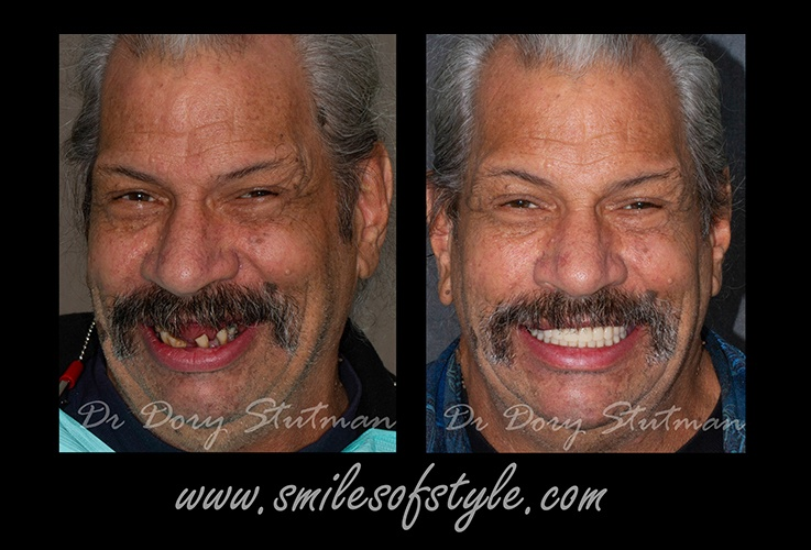 Man before and after smile reconstruction