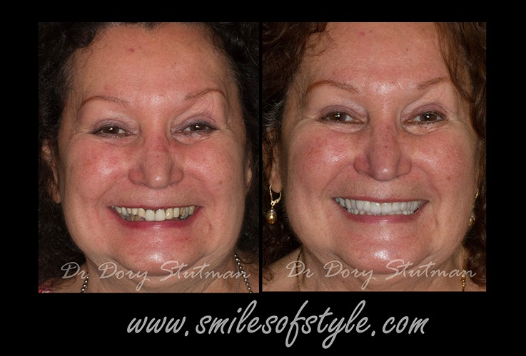Woman before and after smile repair