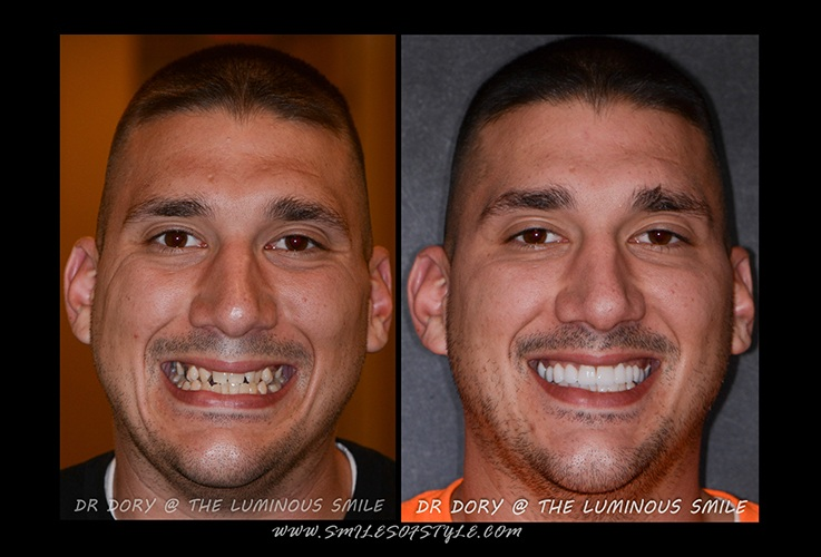 Man before and after smile repair