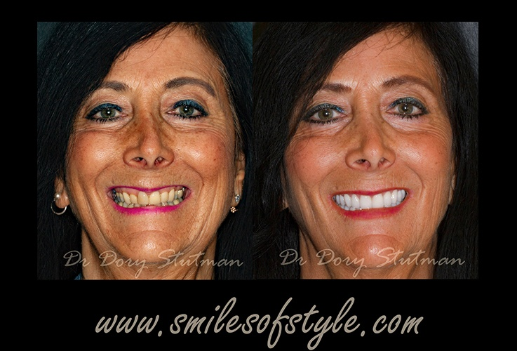 Before and after images of older female patient