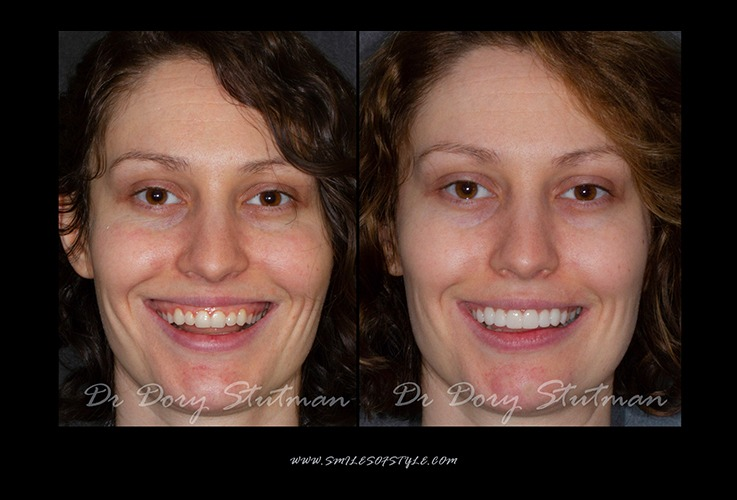 Young woman before and after smile reshaping