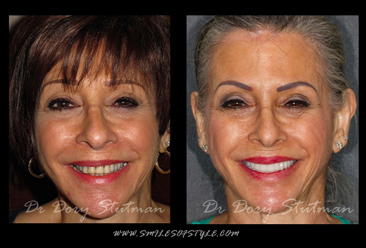 Smiling older woman before and after dentistry