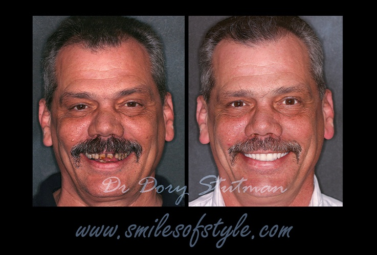 Older man before and after complete smile makeover