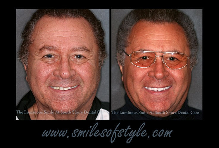 Older man before and after cosmetic dentistr