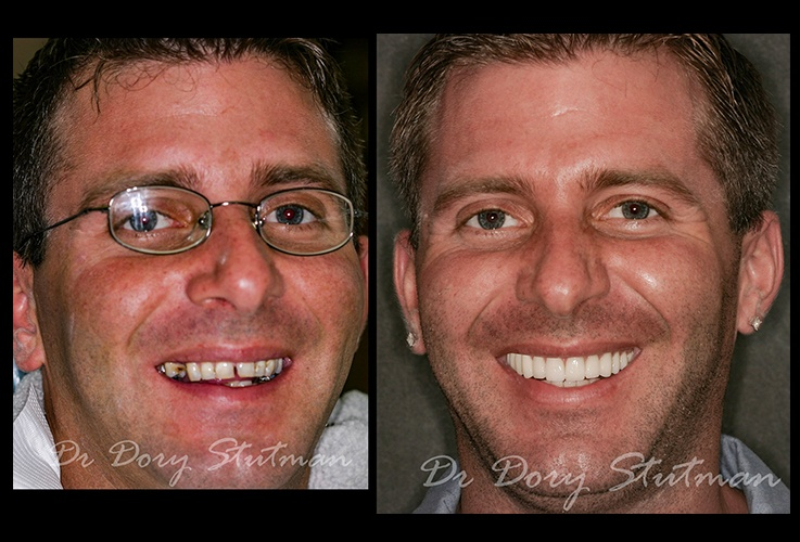 Young man before and after cosmetic dental care
