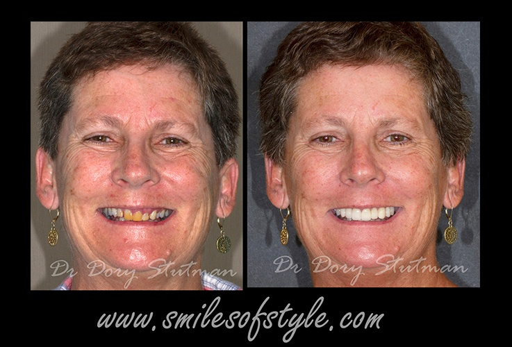 Older woman before and after smile enhancement