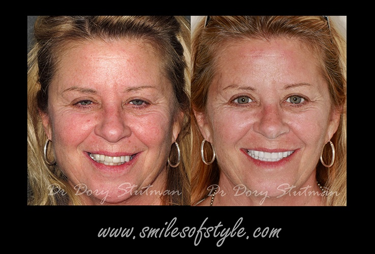 Woman before and after dentistry