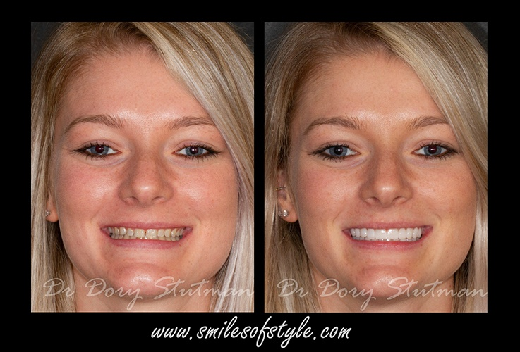 Before and after images of young female patient