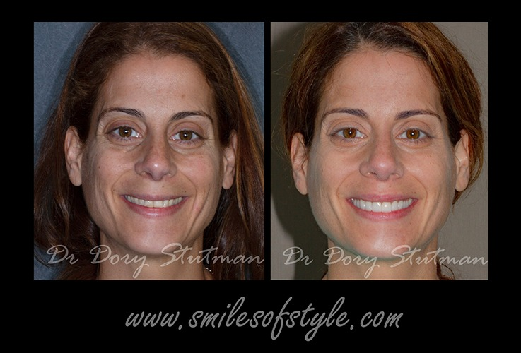 Woman before and after dental care