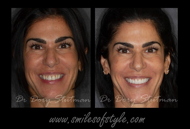 Woman with flawless smile after treatment