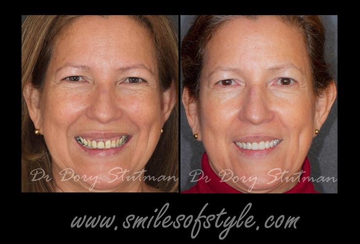 Older woman before and after dental care