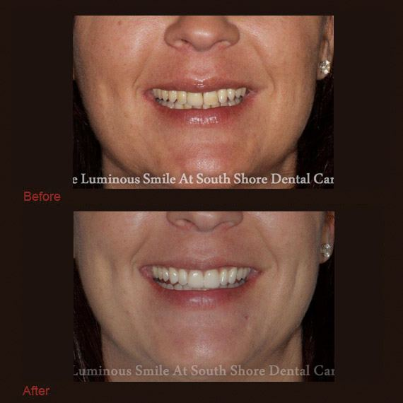 Yellow damaged teeth and flawless restoration