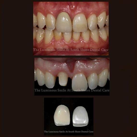 Damaged discolored teeth and dental crown and veneer restoration options